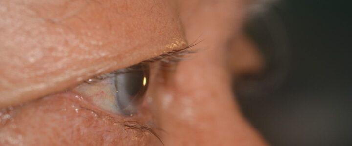Kolesterol Tinggi Bisa Dilihat Dari Mata, Kok Bisa?