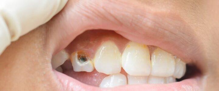 Punya Gigi Berlubang Masih Dibiarkan? Ini Bahayanya Loh!